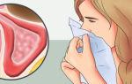 Полисинусит: причины, симптомы, методы и способы лечения