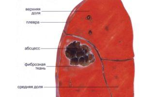 Абсцедирующая пневмония: причины, клиника, лечение