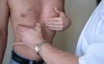 Отчего появляются бугорки на грудной клетке?