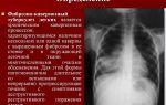 Особенности симптомов и лечения кавернозного туберкулеза