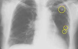 Определение туберкулеза легких на флюорографии
