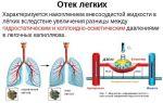 Этиология и клиническая картина кашля при отеке легких