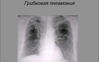 Особенности и патологии грибковой пневмонии