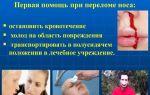 Перелом костей носа: симптомы, первая помощь