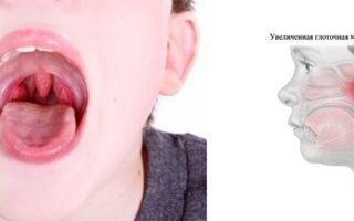 Понятие гипертрофии аденоидов: что это, и как помочь ребенку?