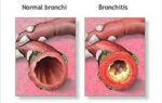Развитие бронхита без повышения температуры: методы лечения и симптомы